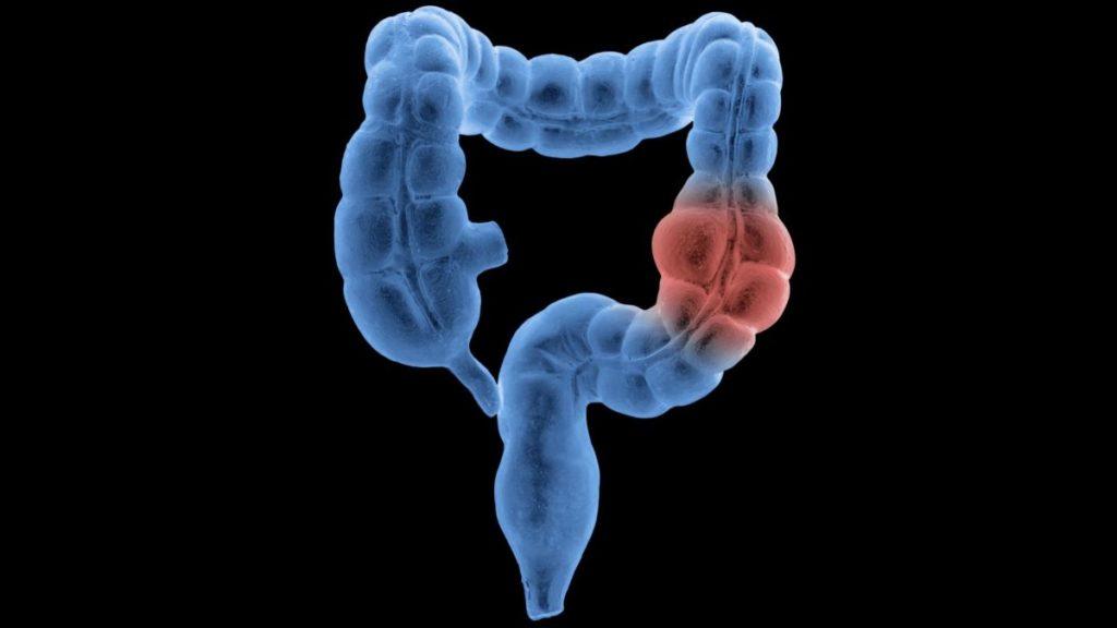 des de l'AECC - Catalunya contra el Càncer reivindica que, malgrat la pandèmia, es mantinguin els programes de cribratge de càncer de còlon.